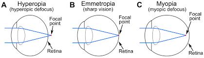 Precision Eye Care